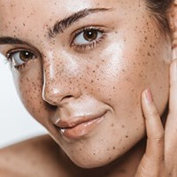 Sun Damage Photofacial